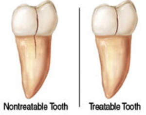 Cracked_tooth