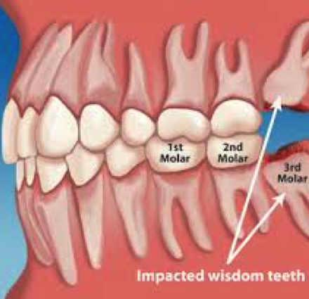 Wisdom teeth (Dental extractions)